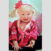 albino chinese ...
