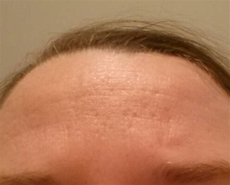 covering a large scar on forehead covering indented acne scars