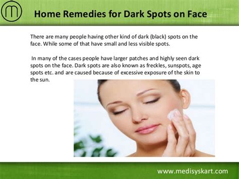 home remedies for spots on