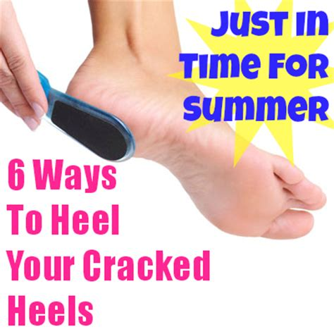 4 Reasons You Chapped And 4 Ways To Stop It by 6 Ways To Heal Your Cracked Heels Just In Time For Summer