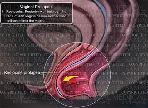 prolapsed bladder symptoms cystocele vaginal prolapse rectocele medical art works