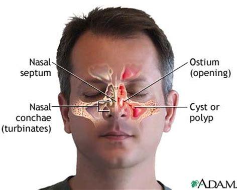 ragade anale interna foto ragadi nasali