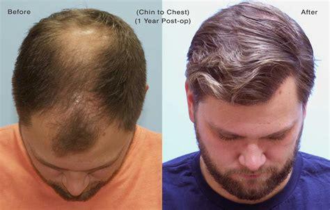 dr yates fue cost per graft 4000 graft fue case study carolina hair surgery