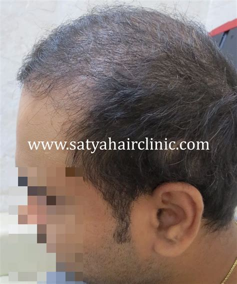 salman synthetic hair synthetic hair transplant biofibre 4000 grafts
