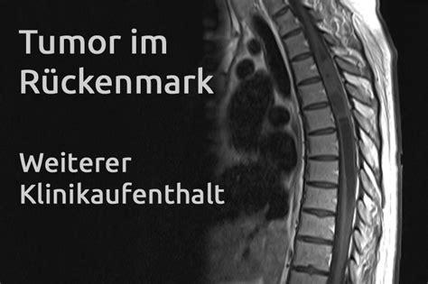 im bett schwindelig tumor im r 252 ckenmark erfahrungsbericht 11 klinikaufenthalt