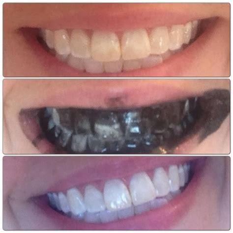 whiten  teeth naturally      probiotics