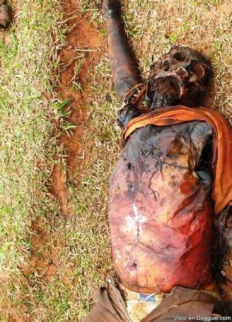 imagenes fuertes de gente muerta fotos horribles de un hombre quemado por un rayo dogguie