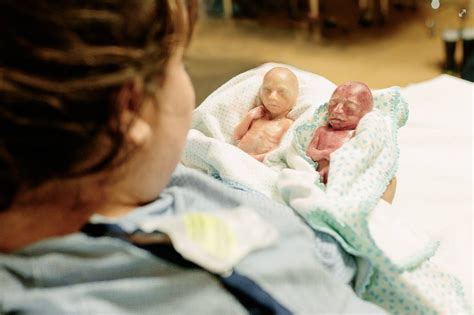 twins born at 25 weeks what a 22 week old unborn baby really looks like