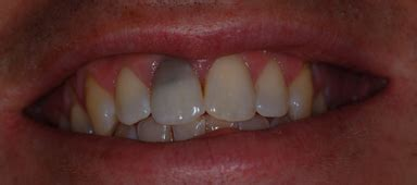 dental bleaching dental argentina