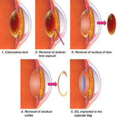 el cuerpo eyes m 225 s de 25 ideas incre 237 bles sobre diagrama del ojo humano en anatom 237 a del ojo ojo