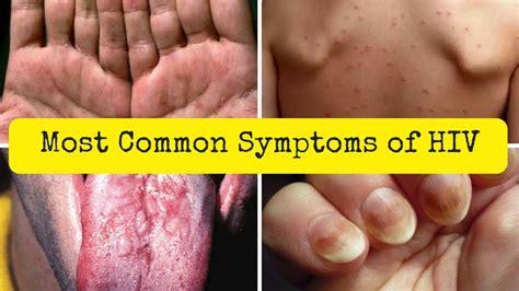 Aids Pictures Symptoms