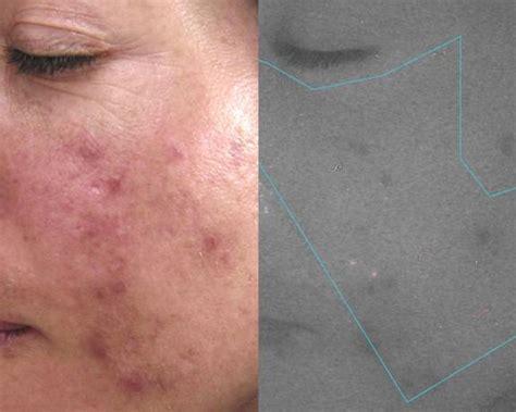 led light skin cancer led light treatment clinical pre treatment for surgery