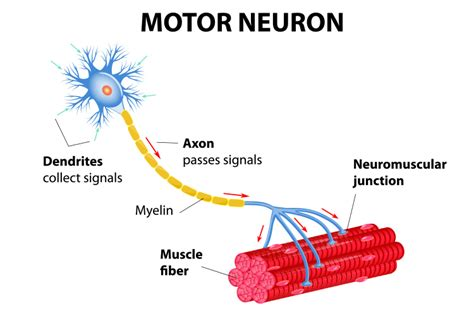 motor nerone disease nursing care of someone with motor neuron disease