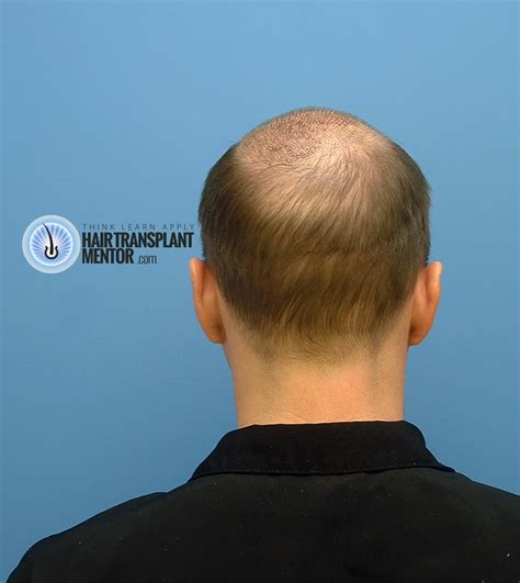 transplant hair second round draft the hair transplant mentor his third strip hair transplant