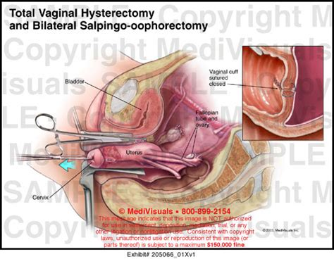 How Is For A Hysterectomy by Hysterectomy Colpohysterectomy