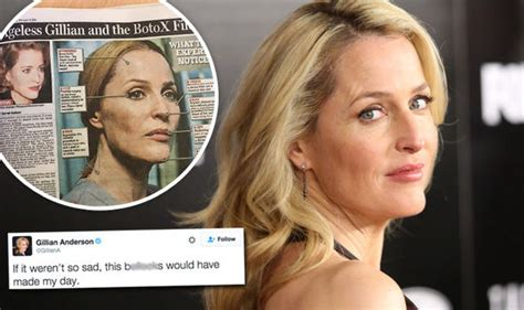 Gillian Top gillian hits back at botox speculation after x