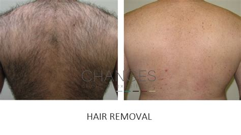 ipl hair removal clinic laser hair removal on nhs home the laser clinic the