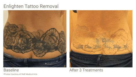 are new tattoos easier to remove removal in seattle at well arts