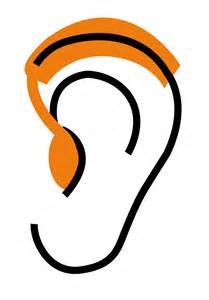 proth 232 se auditive contour ou proth 232 se auditive intra