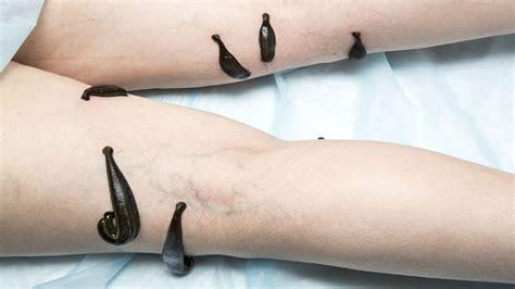 Leech Detox by Leech Therapy Hirudotherapy Benedits And Medicinal Uses