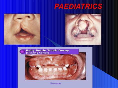 General Care Surgical Bladebisturi No15 1 lecture no 1 introduction to general dentistry
