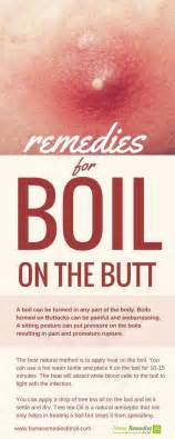boils on buttocks 2 home remedies