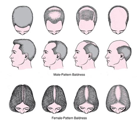 male pattern baldness shape what you need to know about hair loss tip top treatments