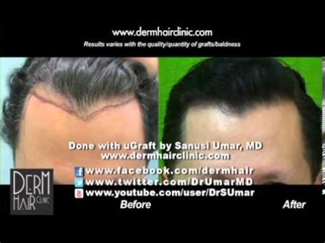 how to hide widow peaks correction of a sharp widow s peak through follicular unit