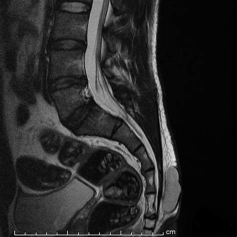 pilonidal cyst mri epidermal cyst overlying the sacrum image radiopaedia org