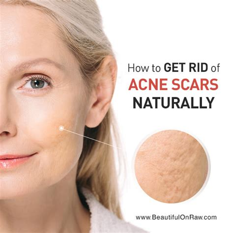 How To Get Rid Of Acne Scars by How To Get Rid Of Acne Scars Naturally Beautiful On