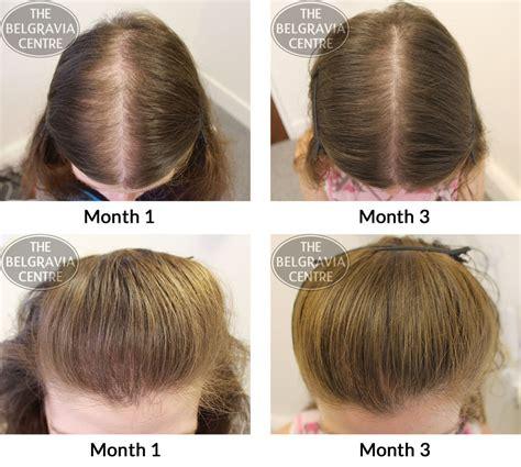 i have female pattern hair loss belgravia hair loss blog