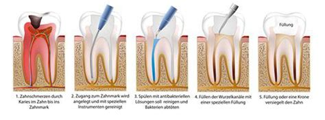 wurzelbehandlung wann schmerzfrei endodontie zahnarztpraxis dr sp 228 th dr soekamto