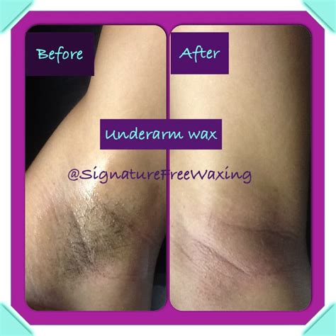 full brazilian wax photos before and after brazilian wax photos before and after