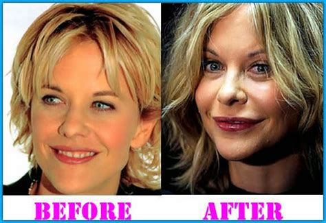 post plastic surgery meg ryan hairstyles meg ryan joker pictures hairstylegalleries com