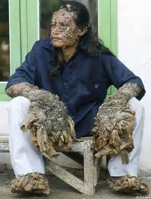 Passion Fruit Plant Diseases - a man known as tree man grows bark like warts on his skin medical mysteries