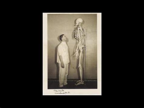 imagenes medicas perturbadoras 161 perturbadoras im 225 genes m 233 dicas de la historia taringa