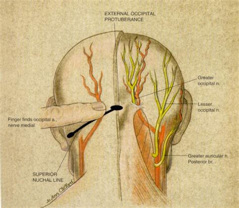 managing acute with nerve blocks a guide for patients books 25 best ideas about occipital nerve block on