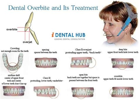 orthognathic surgery age 50 and over the 25 best ideas about overbite braces on pinterest