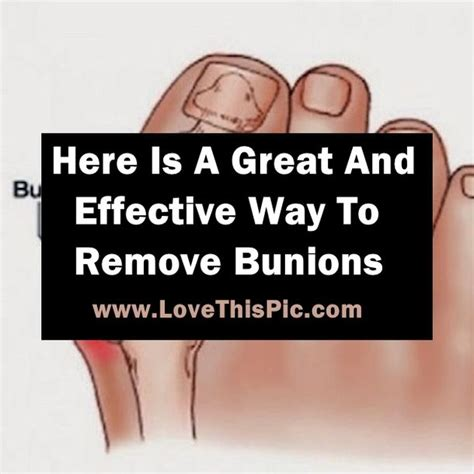 what is the best way to remove a tattoo here is the best and most effective way to easily remove