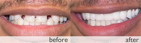 dental implant beverly 187 missing teeth implant photos