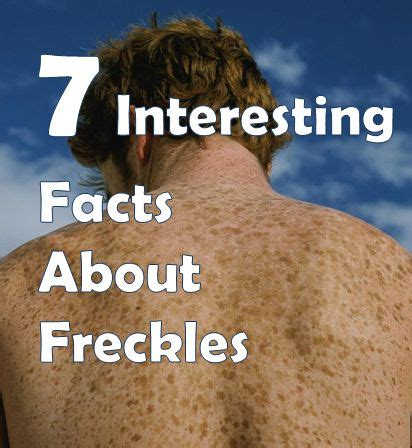 7 Awesome Facts by 7 Interesting Facts About Freckles You Must Skin