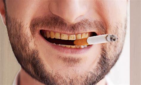 teeth whitener  smokers