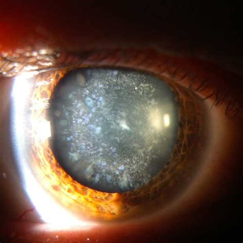 cataract treatment cataracts eyedrop treatment breakthrough revealed by us scientists optician