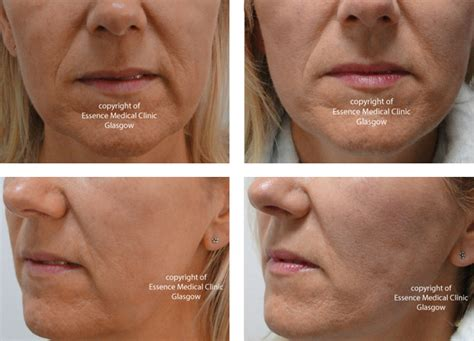 how to soften jowls puppet facelift lunch time facelift thread facelift