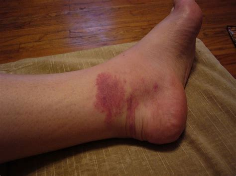 480 Square Feet by Left Foot Rash Day 3 1 Jpg Flickr Photo Sharing