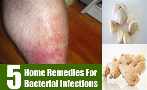 skin infection home remedy 5 home remedies for bacterial infections treatments cure for bacterial