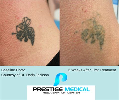 quickest tattoo removal laser removal prestige rejuvenation center