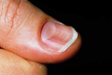 Flat Nail Beds Haematology Iron Deficiency Anaemia Gponline