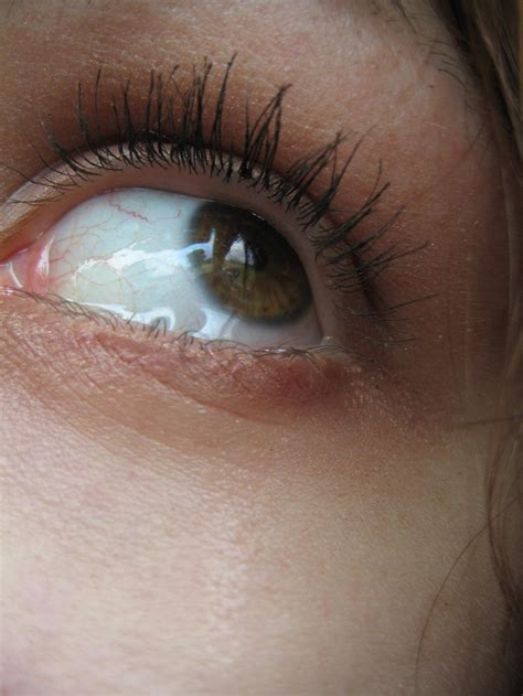 my eye is red watery and sensitive to light eye pain watering sensitivity to light mouthtoears com