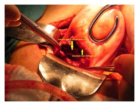 Bleeding Restarted After C Section by Secondary Postpartum Hemorrhage With Uterine
